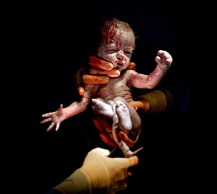 Fantastiske fotos fra sekunderne efter en fødsel