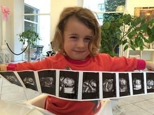 selma-lillebror-scan